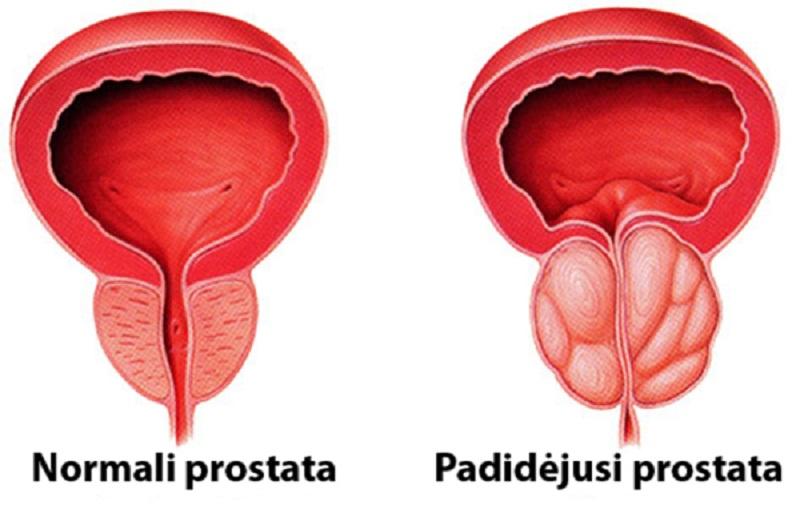 Prostatit őssejtek Prostatitis éles fájdalom